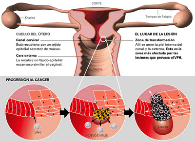 abdominal cancer nhs cancer biliar etapa 4