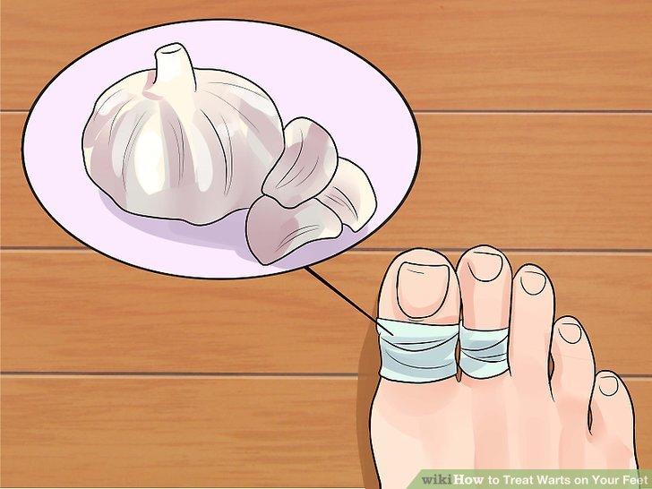 wart foot remedy frottis papillomavirus traitement