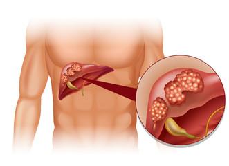 cancerul ficatului