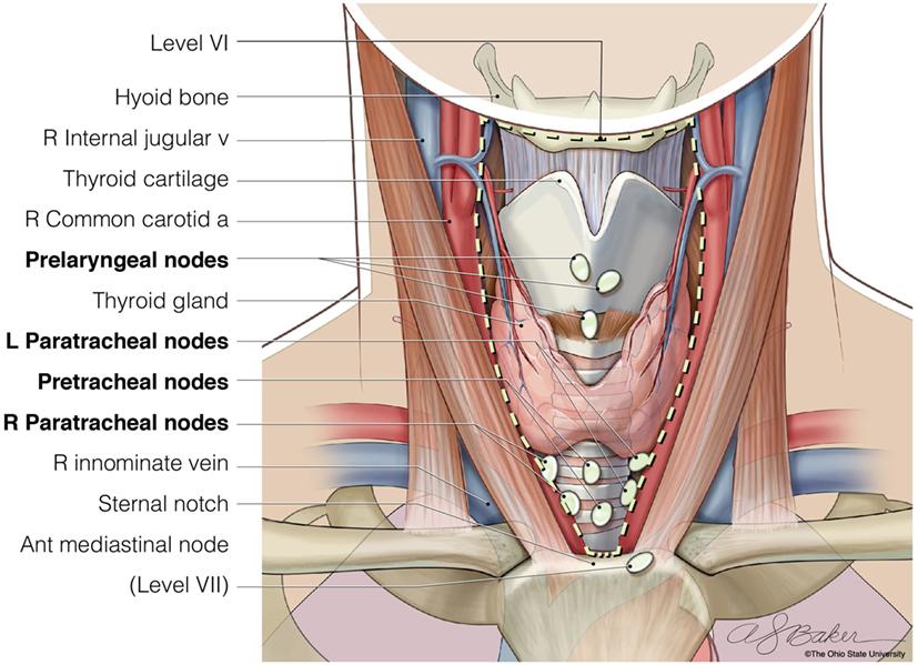 Carcinom folicular vs adenomatos