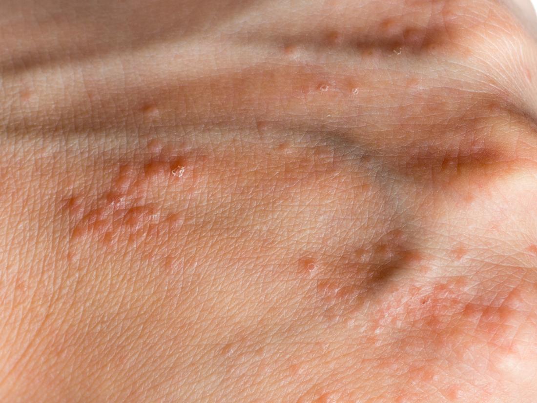 hpv shiny skin