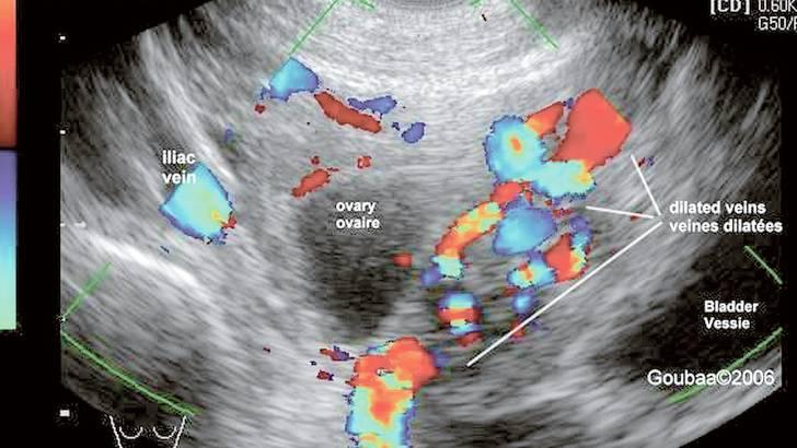cancer echographie abdominale