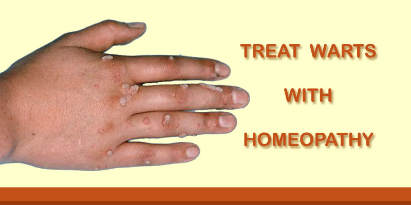 wart treatment in homeopathy
