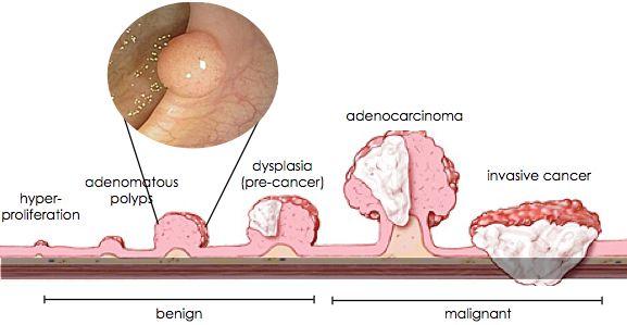 papilloma vescicale
