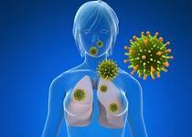cancer bronhopulmonar metastaze