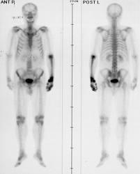 Metastaza osoasă - simptome și tratament