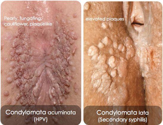 condyloma acuminata and condyloma lata