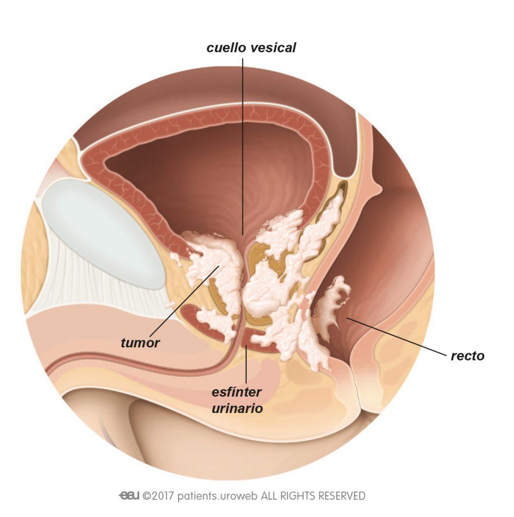 kako otkriti parazite u crijevima papilloma lingua terapia