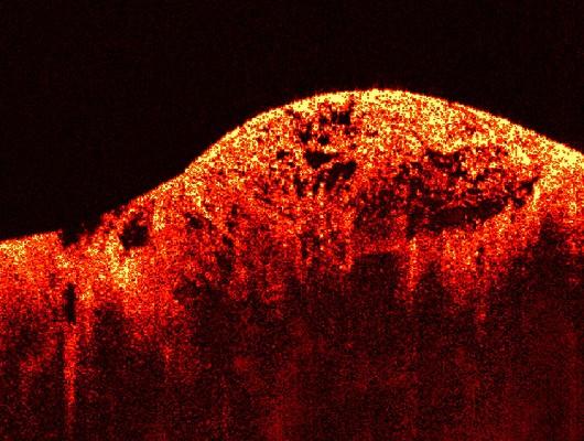 Modificările funcţionale ale celulelor canceroase în raport cu celulele normale
