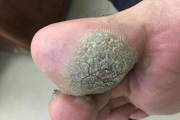 plantar wart on foot nhs