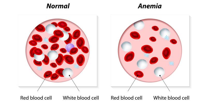 Care este legatura dintre anemie si intoleranta la gluten?