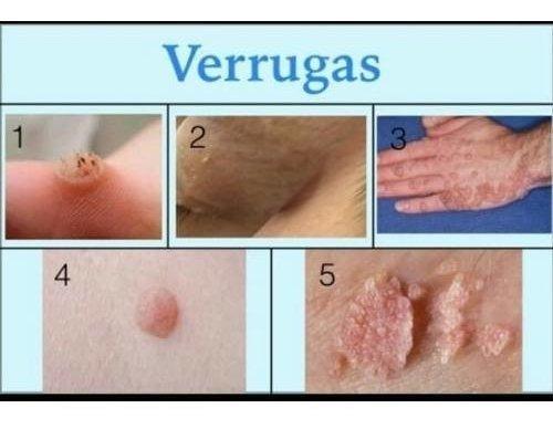 hpv por herpes