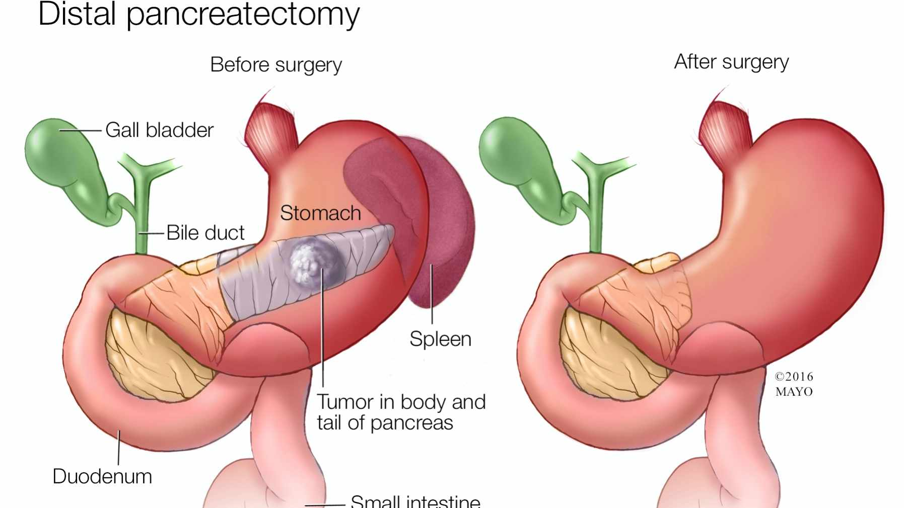 METABOLIC DISORDERS IN PATIENTS OPERATED FOR PANCREATIC CANCER