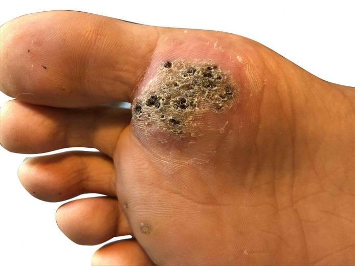 hpv warts on bottom of feet