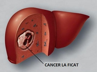 cancer ficat tratament