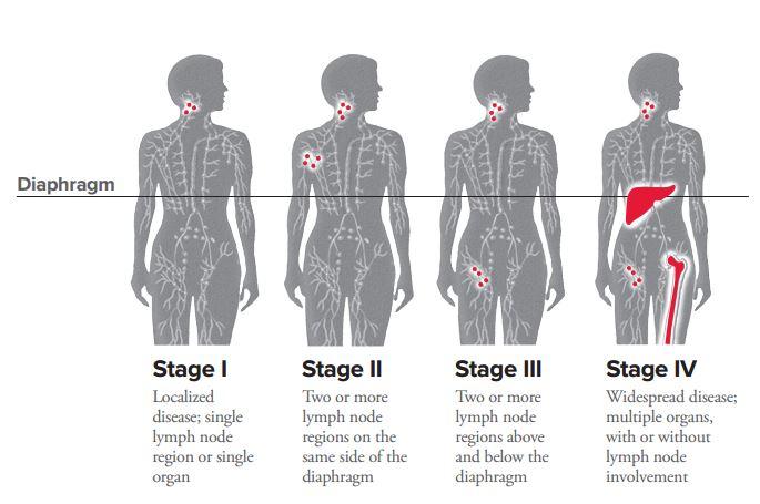 lymphatic cancer hodgkins disease