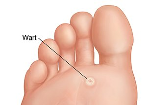 hpv wart on foot cancer mamar mastectomie