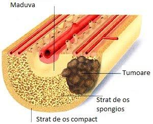 cauzele cancerului de oase