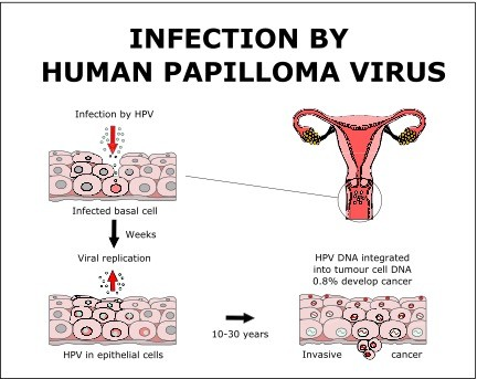 related to infection with human papillomavirus (hpv) cervical cancer rate