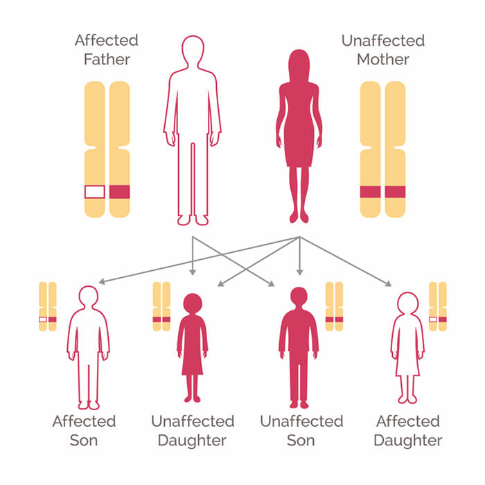metastatic cancer hereditary parazitii cotton