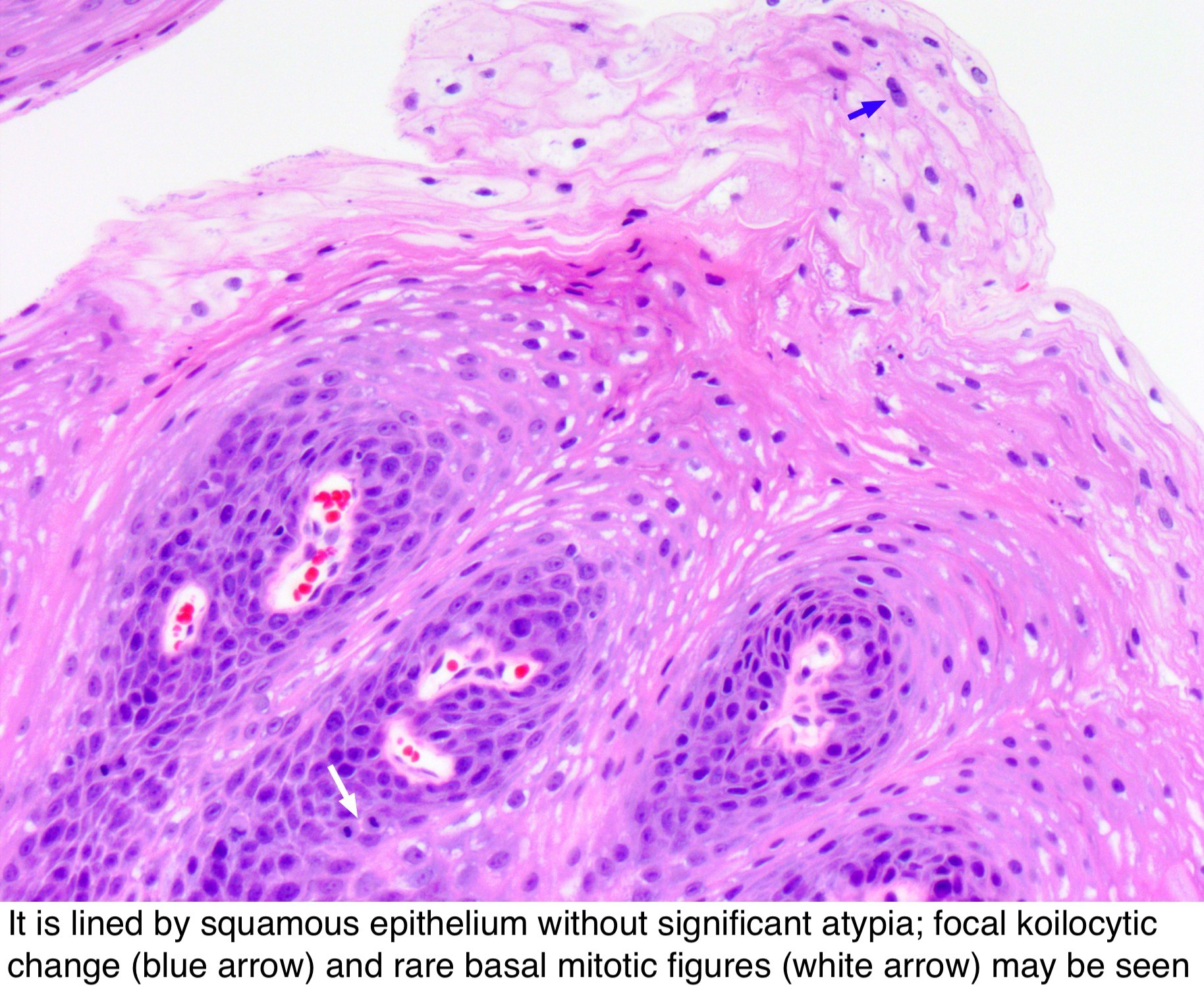 papilloma of nasal vestibule
