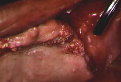 cancer de col uterin se transmite