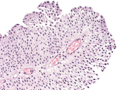 papillary urothelial neoplasm of low malignant potential immunohistochemistry