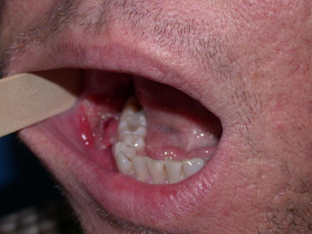 hpv virus lip genital warts on tongue symptoms