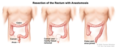 rectal cancer nci colorectal cancer quotes