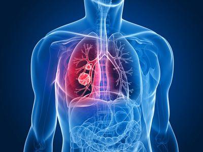 Cancerul pulmonar: cel mai mortal tip de cancer din lume | Regina Maria