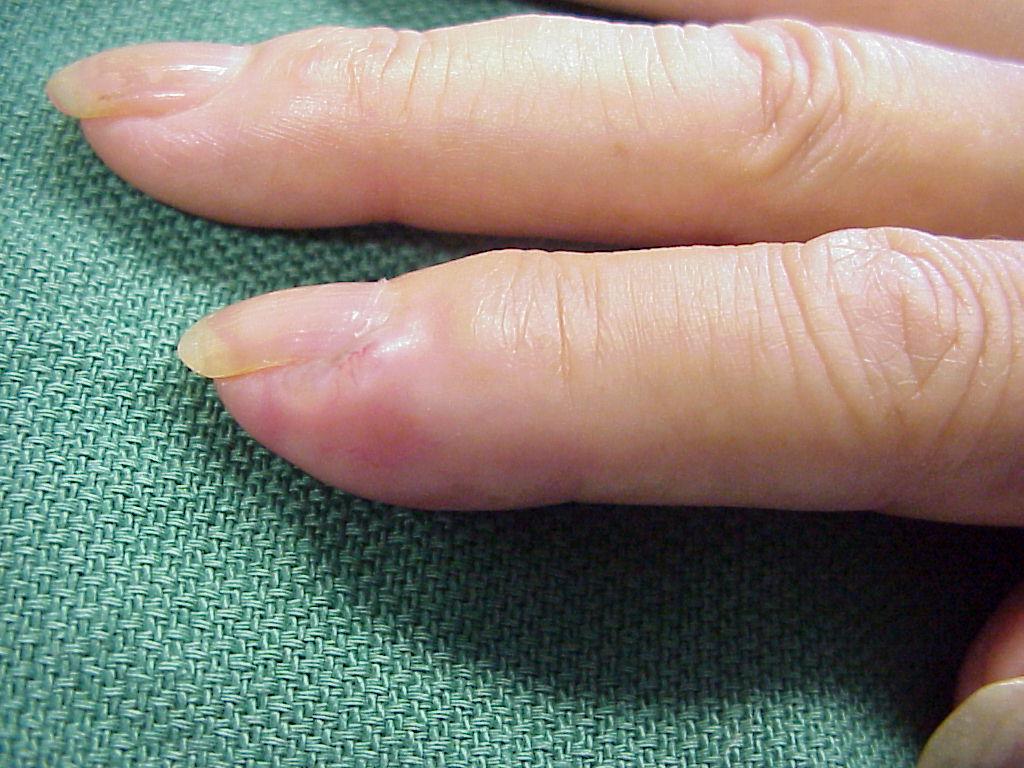 fingertip cancer giardia lamblia la copii