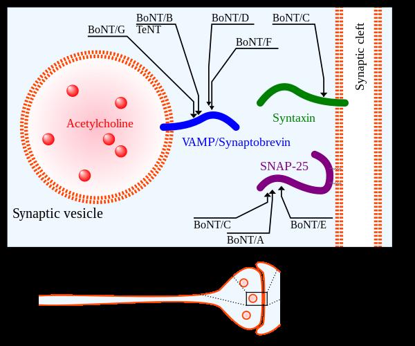 botuline toxine b cancer de pancreas ultrassonografia