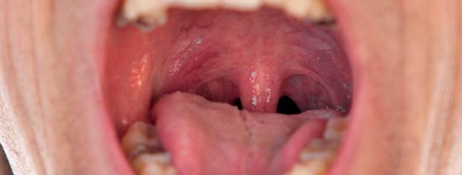 de garganta por papiloma sintomas