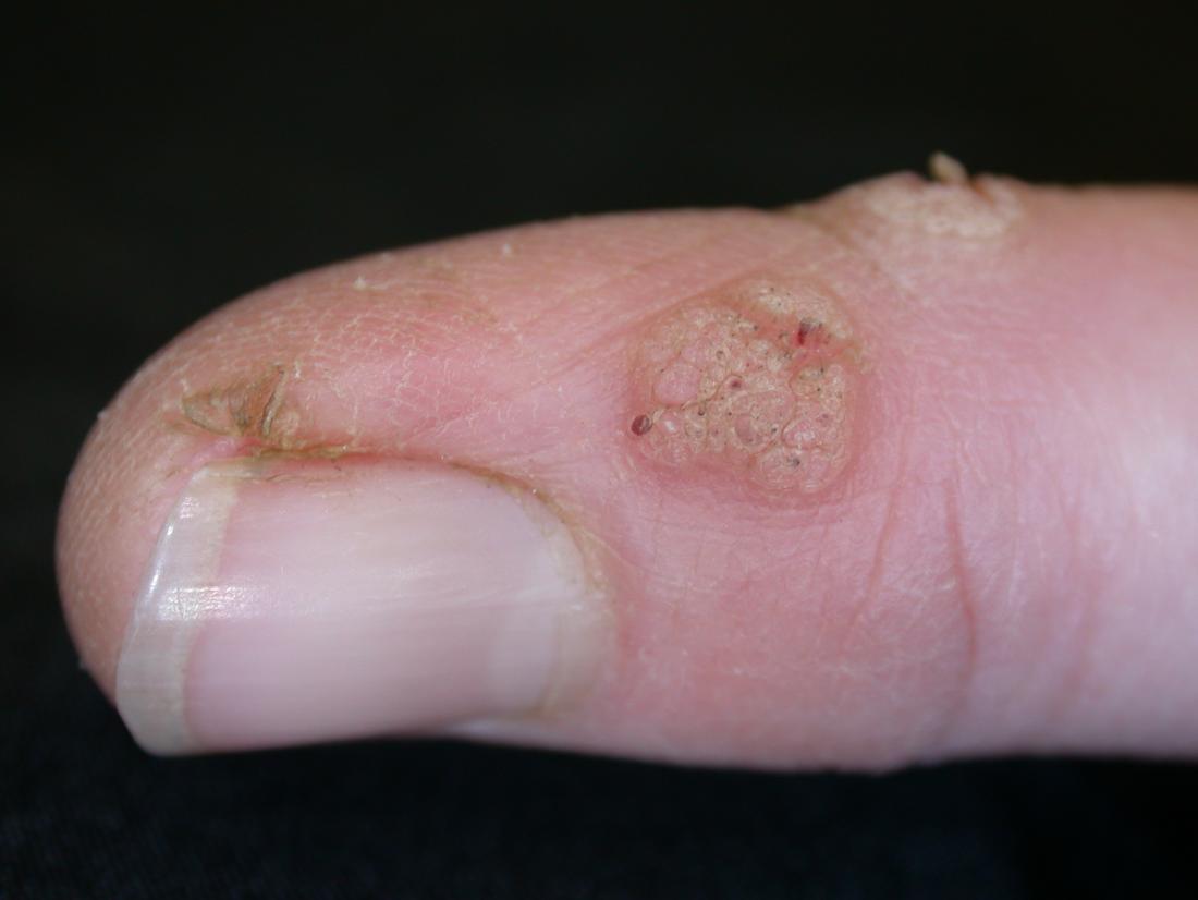 wart virus on arms