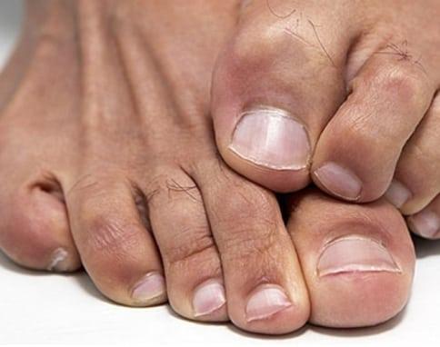 ciuperci ale piciorului