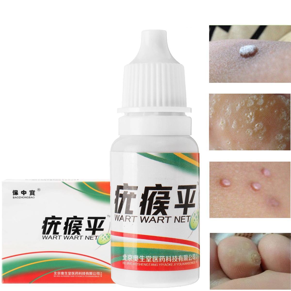 Condylomata (Genital Warts; HPV)   Cabinet ginecologie