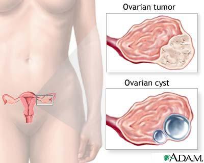 vitMATINA Cancerul ovarian: ce ar trebui sa stie fiecare femeie | Medlife