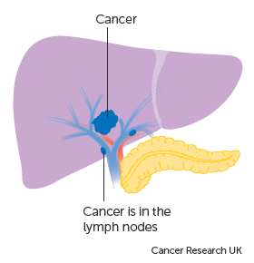 TUMORAL MARKERS IN OVARIAN CANCER – A LITERATURE REVIEW – Romanian Medical Journal
