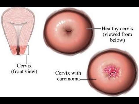 human papillomavirus in tagalog