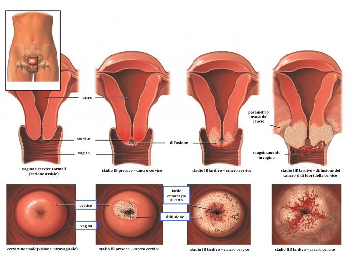 papilloma virus 3 stadio