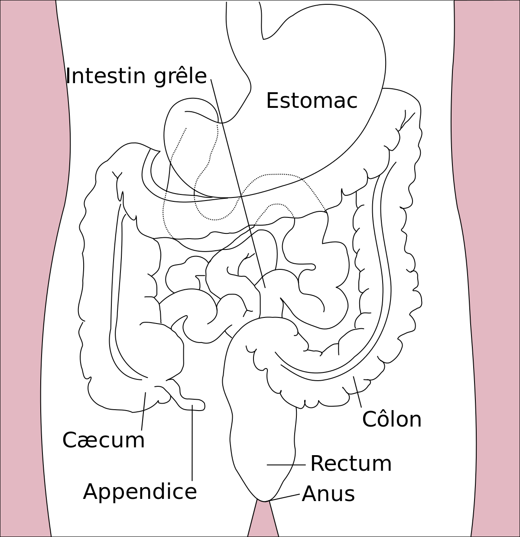Varice in intestin