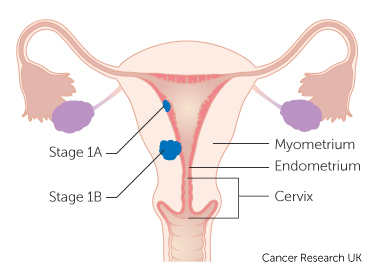 uterine cancer endometrial gastric cancer journal articles