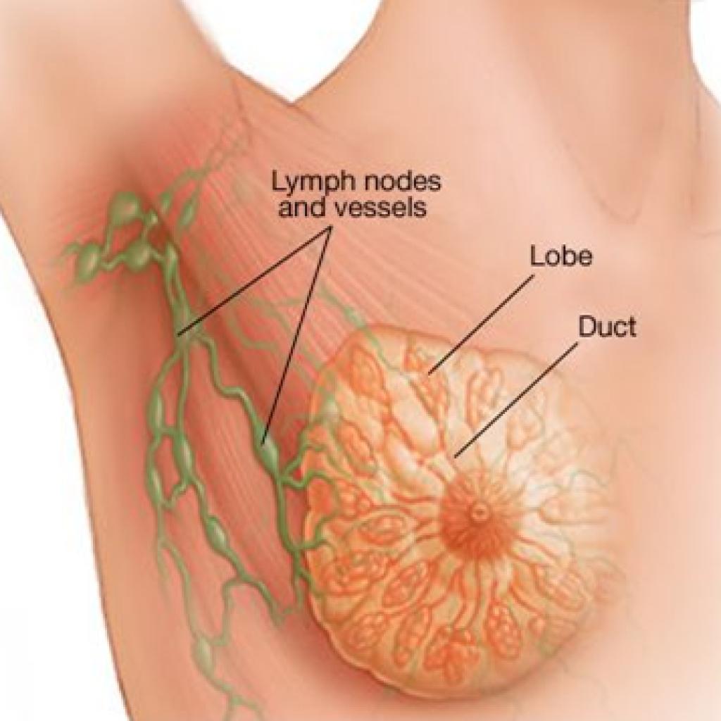 cancer de san stadiul 1