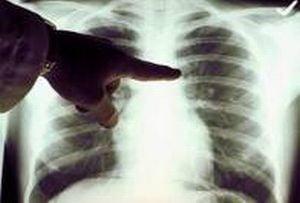 cancerul pulmonar la nefumatori papiloma humano en genitales masculinos