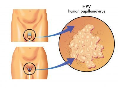 hpv symptoms when papiloma virus en bovinos
