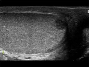 cancer testicular usg