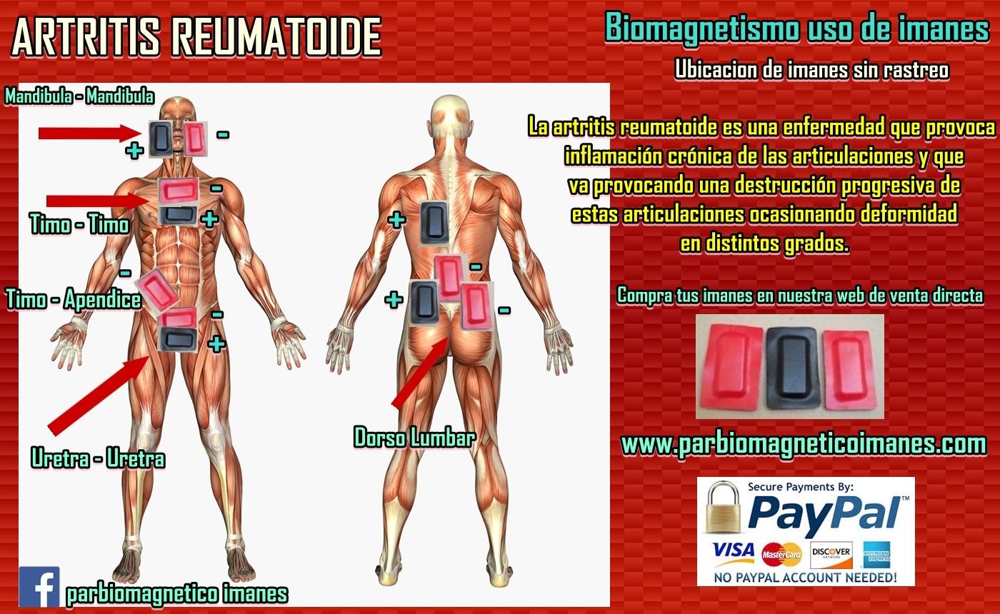 papiloma humano tratamiento biomagnetismo le virus papillomavirus humain (vph)