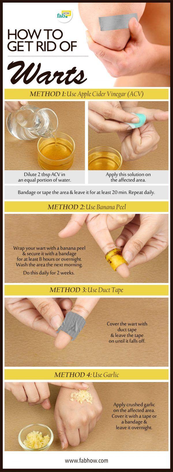 cara menghilangkan papiloma orez dezintoxicare