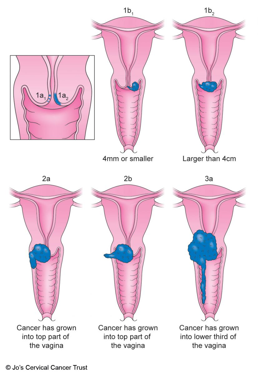 pancreatic cancer types metode de detoxifiere