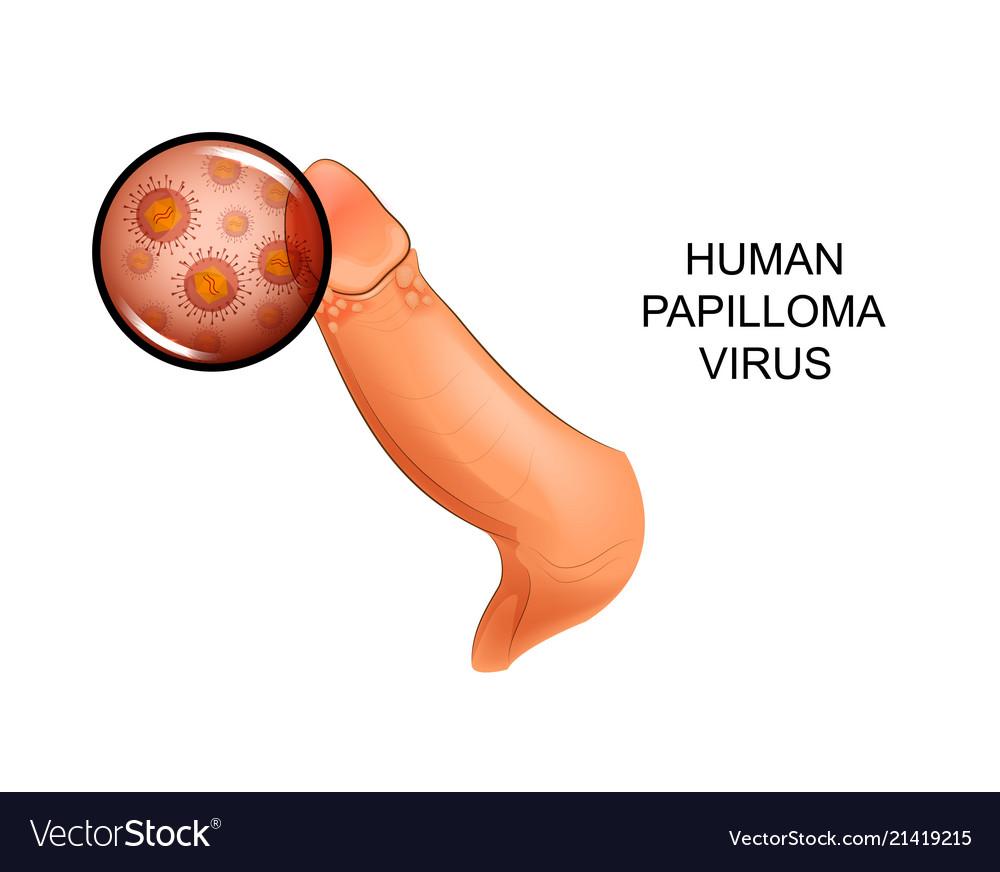 human papilloma virusi ni nini